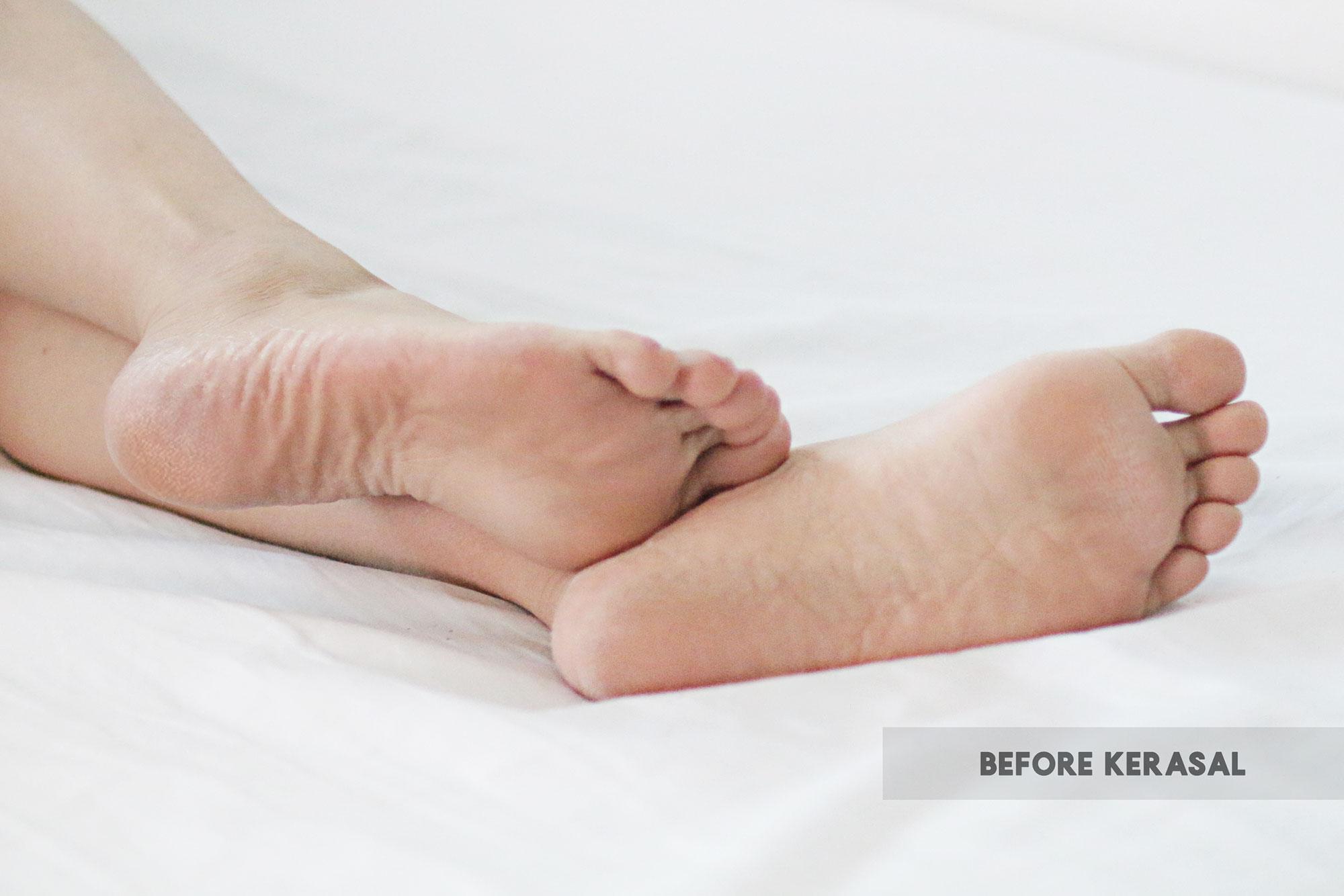 Before Kerasal Intensive Foot Repair