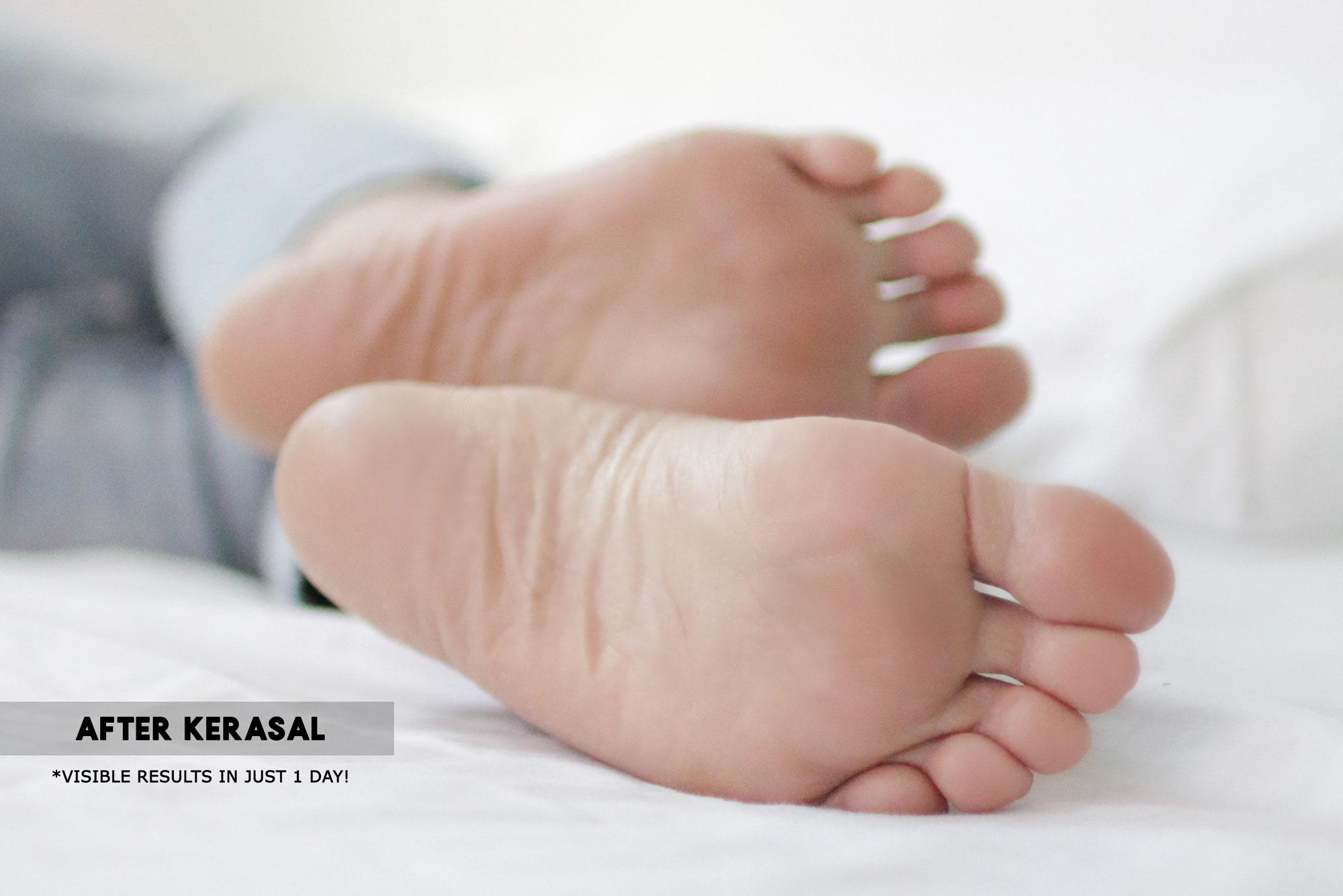 After Kerasal Intensive Foot Repair