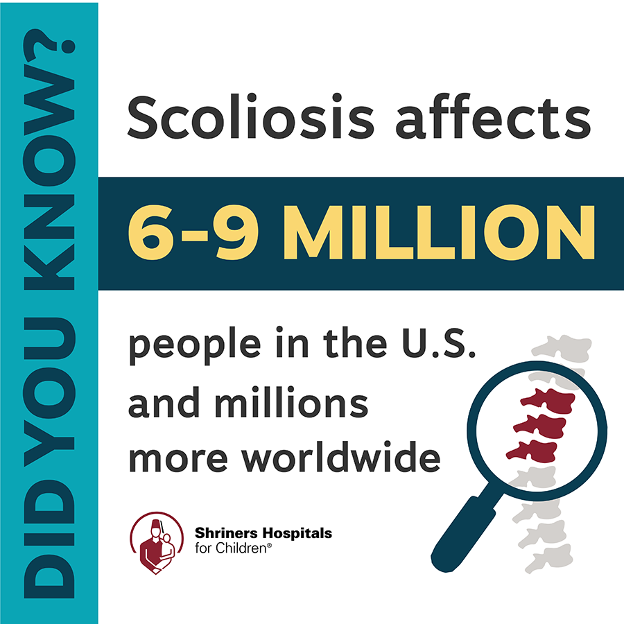 Scoliosis Shriners Hospitals for Children